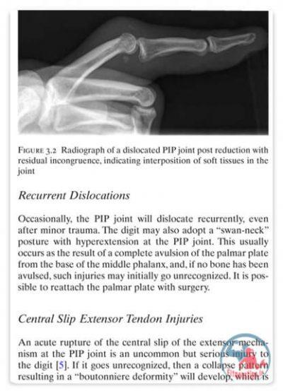 کتاب آسیب ورزشی دست